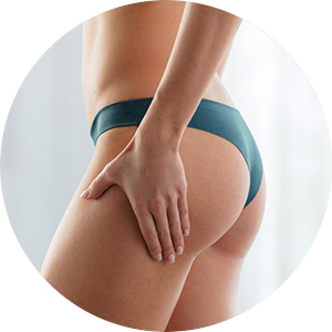 Cellulite Incrustee Action Intensive